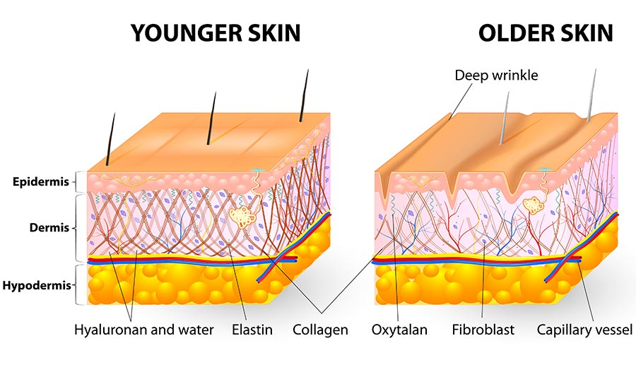 Younger looking skin, The Sophia Medspa, Framingham, MA