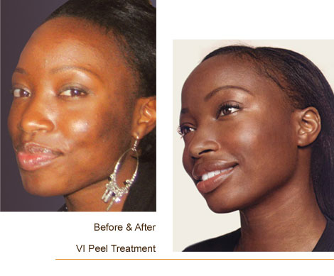 VI Peel Treatment Results