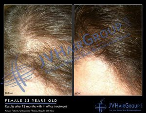 Laser hair therapy results, The Sophia Medspa, Framingham, MA