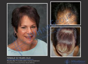 Lasercap results, The Sophia Medspa, Framingham, MA