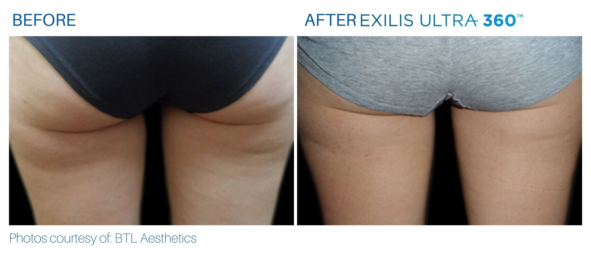 Cellulite treatment before and after at The Sophia Med Spa in Sudbury, Massachusetts
