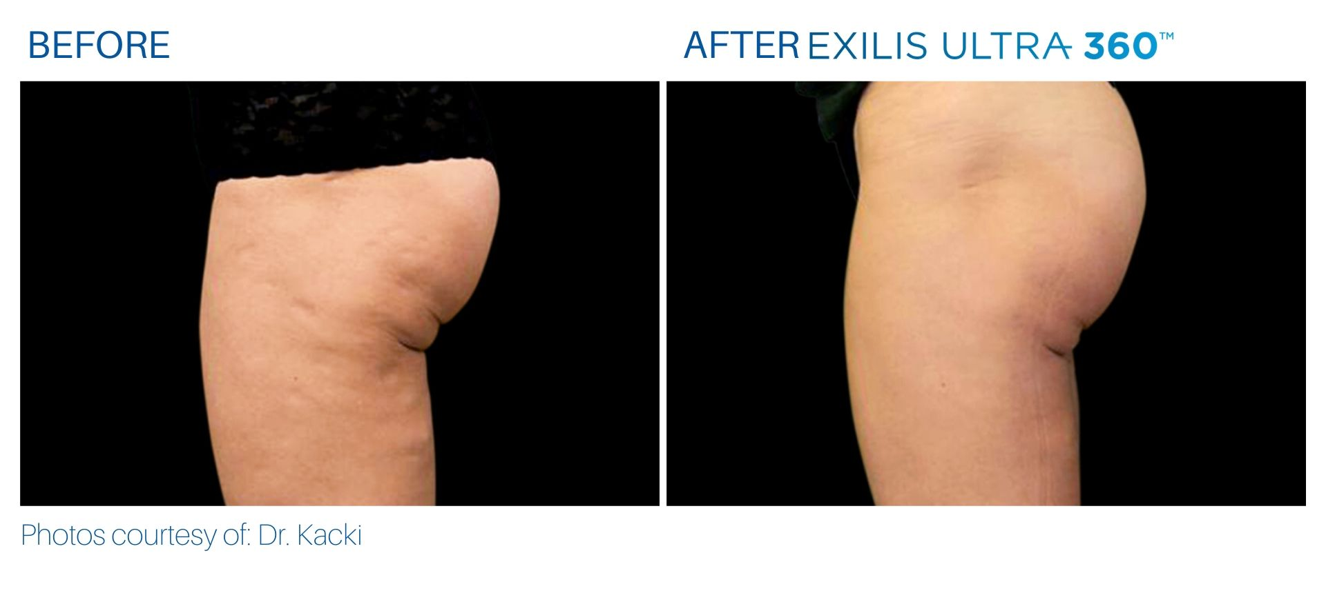 Cellulite treatment before and after at The Sophia Med Spa in Sudbury
