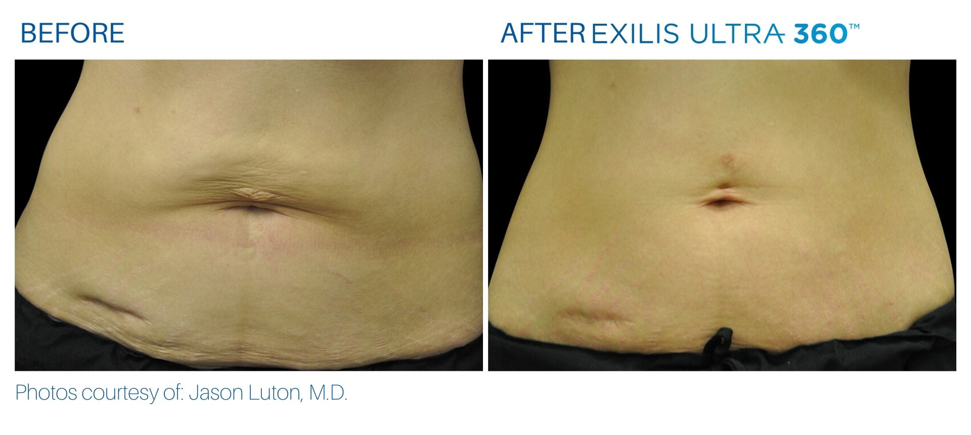Exilis Ultra before and after at The Sophia Med Spa in Sudbury