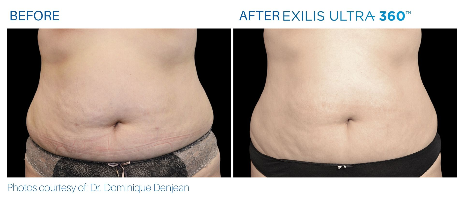 Exilis Ultra before and after at The Sophia Med Spa in Sudbury, Massachusetts