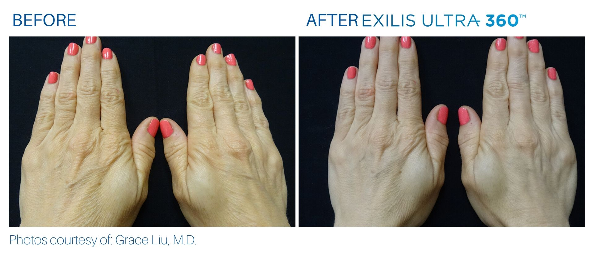 Exilis Ultra for hands before and after at The Sophia Med Spa in Sudbury