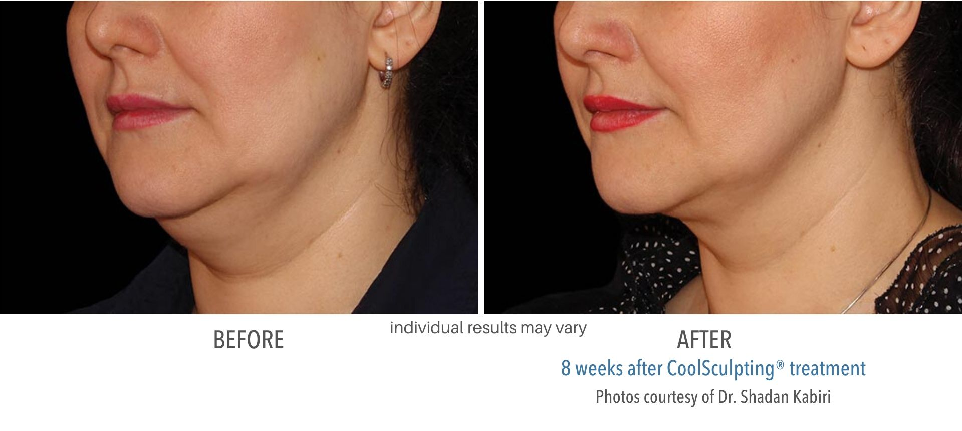 coolsculpting before and after double chin Sudbury, MA