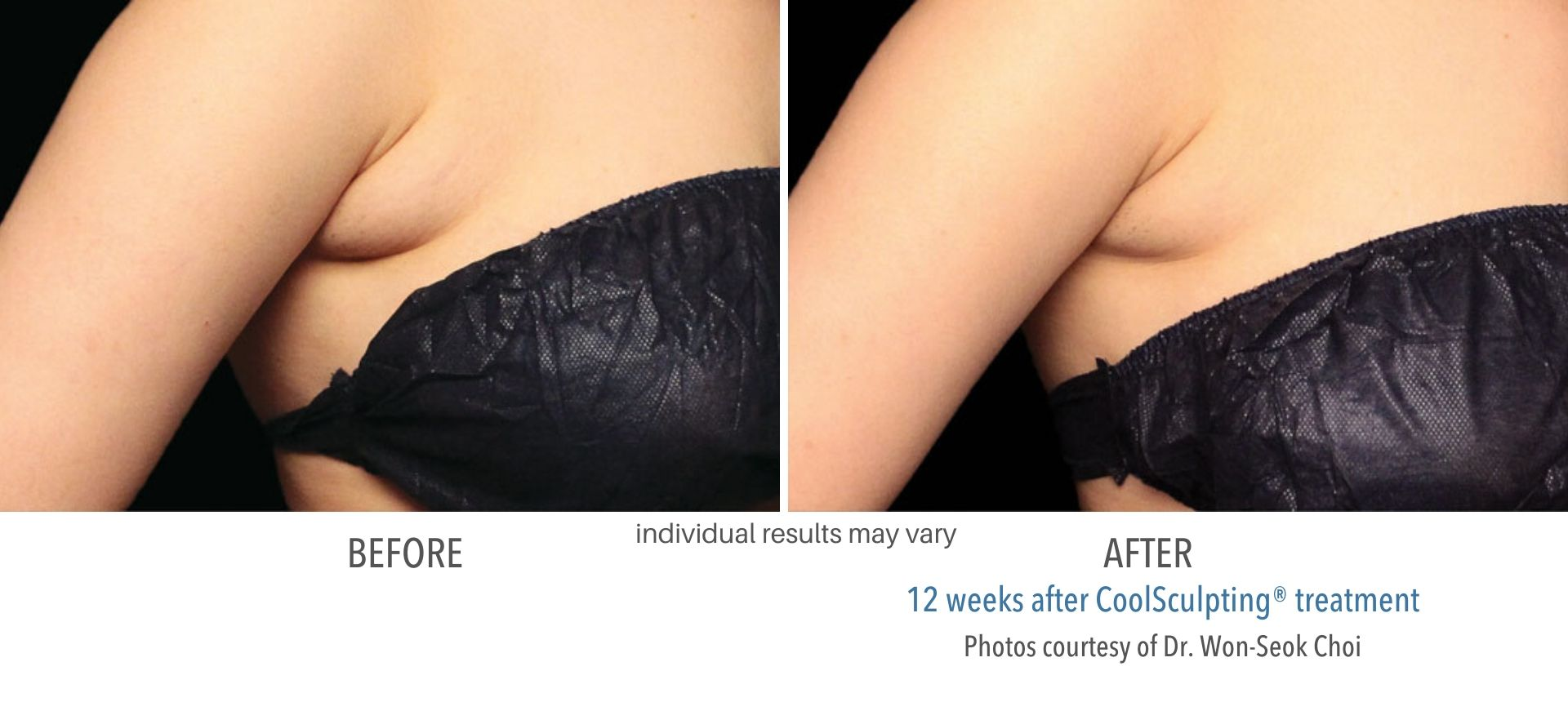 coolsculpting before and after armpit fat Sudbury, MA