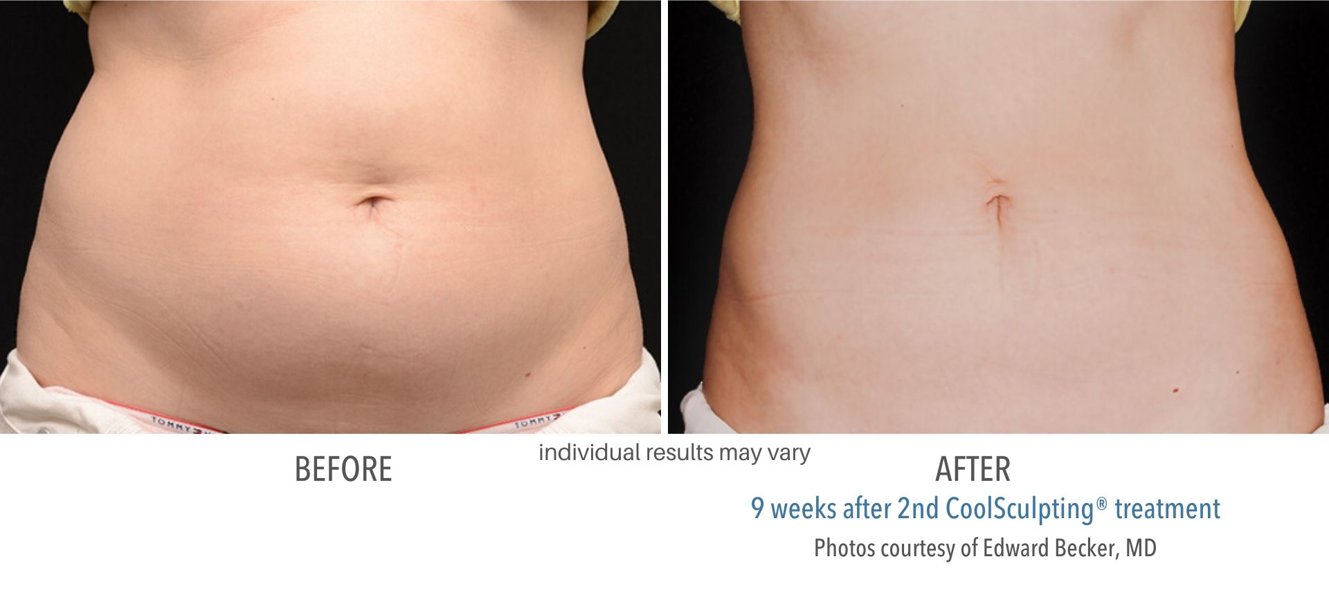 coolsculpting before and after female abdomen Sudbury, MA