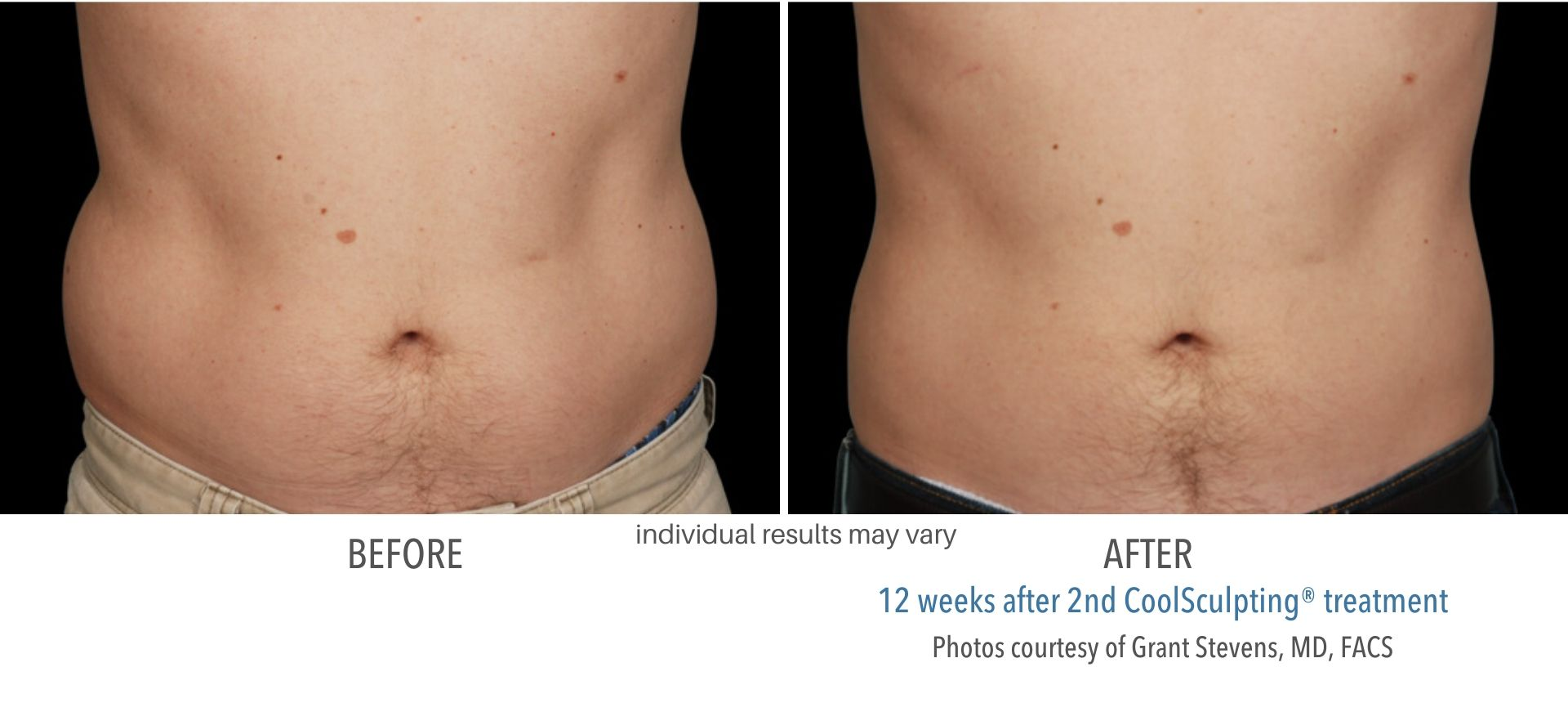 coolsculpting before and after male abdomen Sudbury, MA
