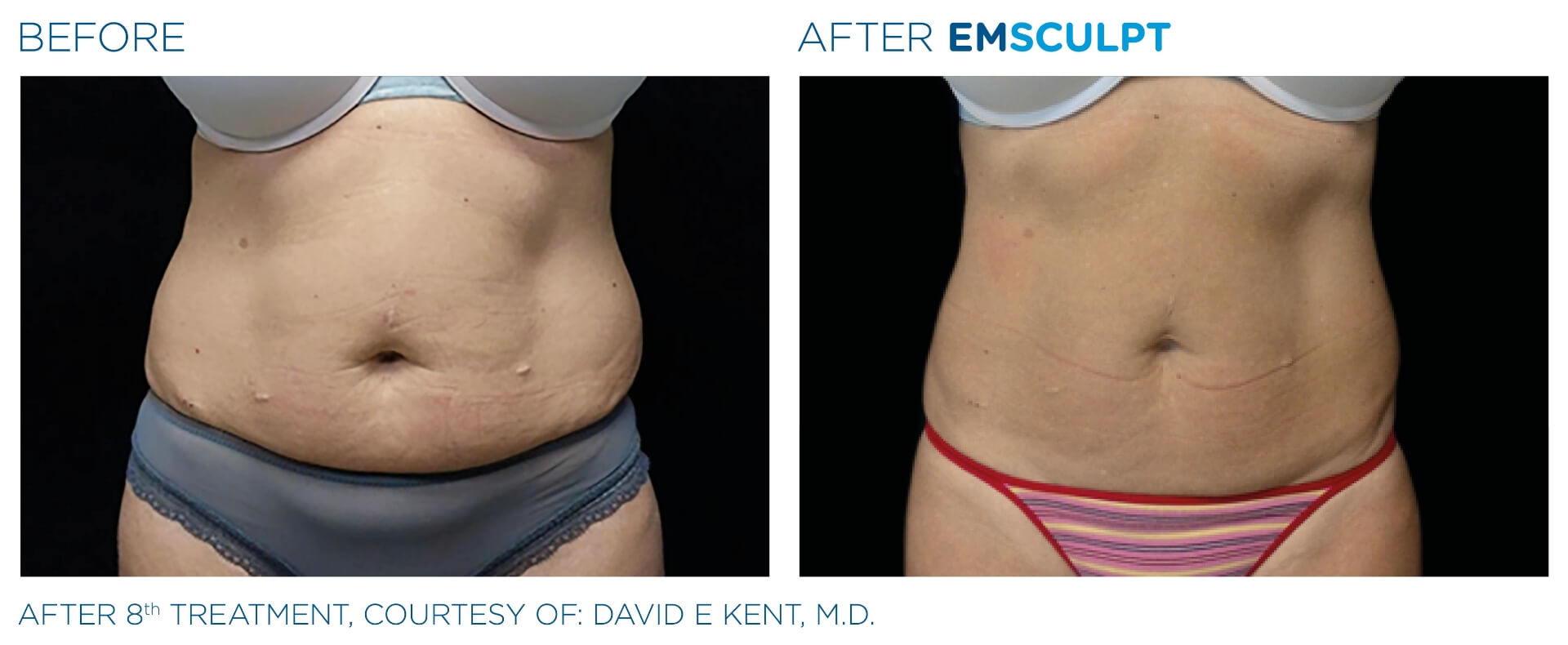 emsculpt before and after female abdomen the sophia medspa