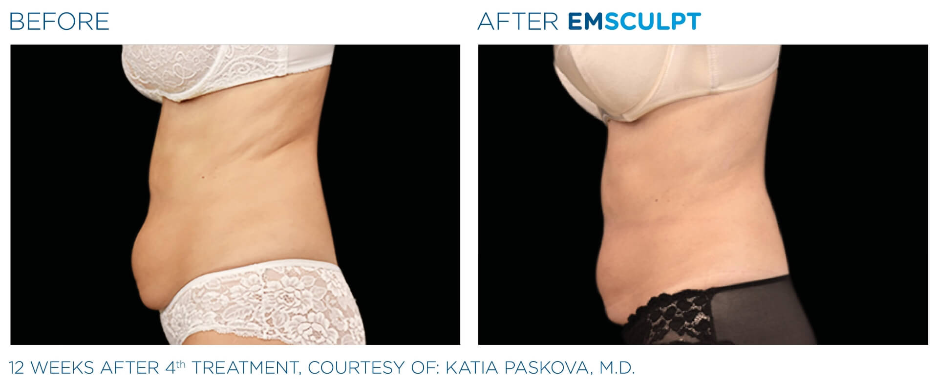 emsculpt before and after the sophia medspa in sudbury