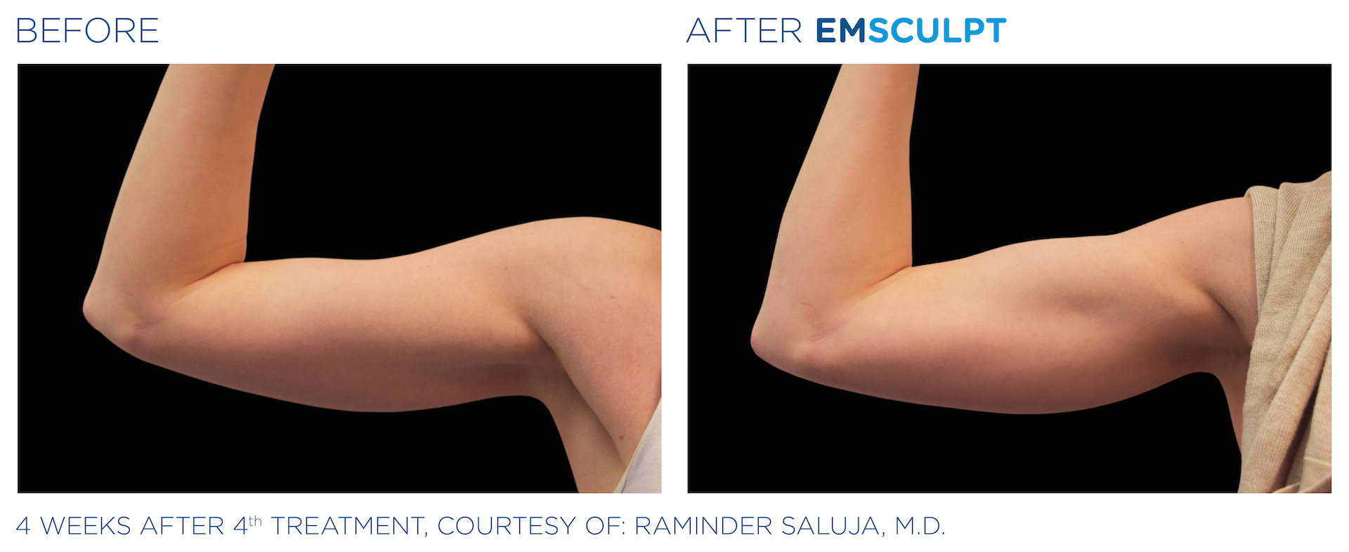 emsculpt before and after arms the sophia medspa in sudbury MA