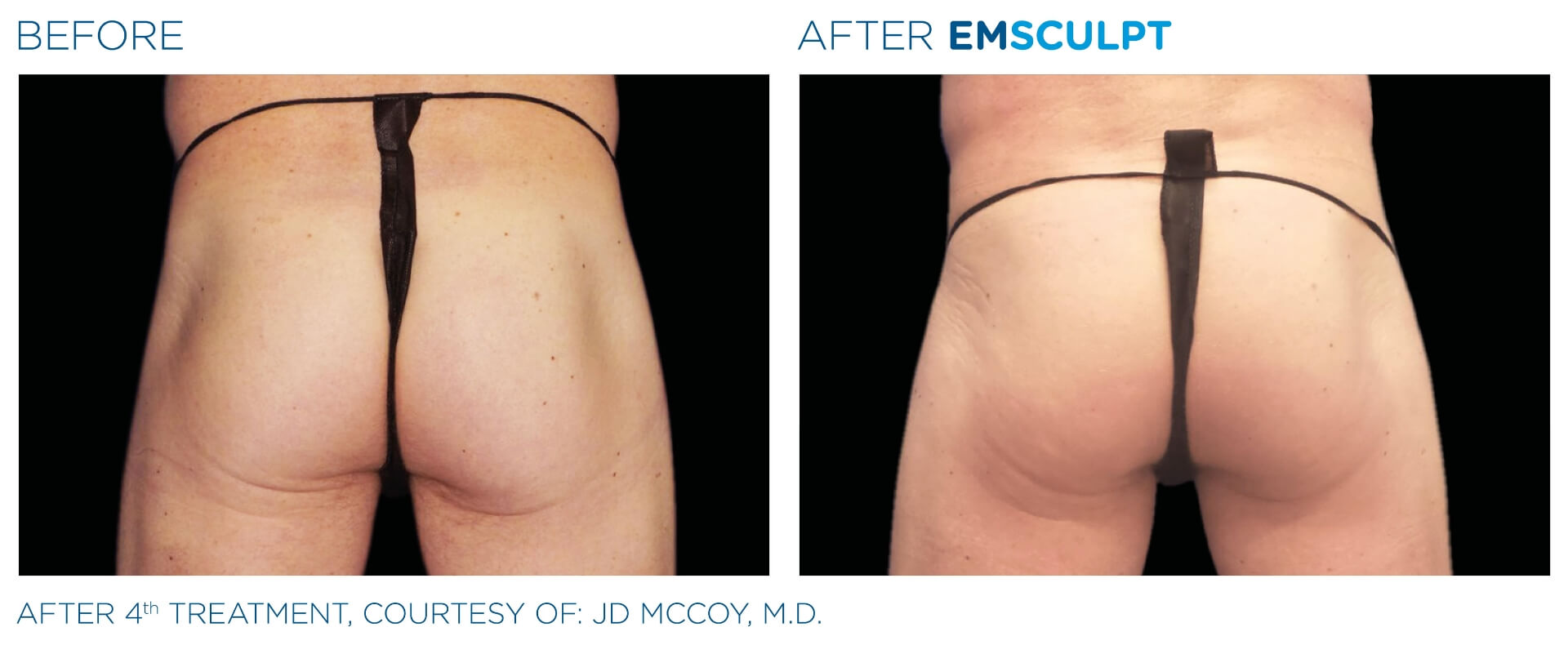 emsculpt before and after male buttock the sophia medspa in sudbury, ma